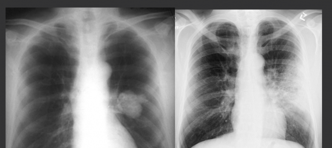 Apps and modules for learning to read chest x-rays on the wards